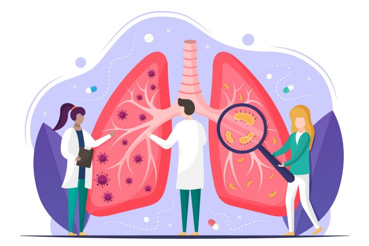 Free Vector Illustration Lung Disease (COVID 19)